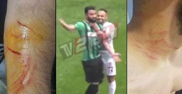 Futbol Sahaları Bunu da Gördü! Amedsporlu Mansur Çalar Eline Gizlediği Jiletle Rakip Futbolcuları Yaraladı