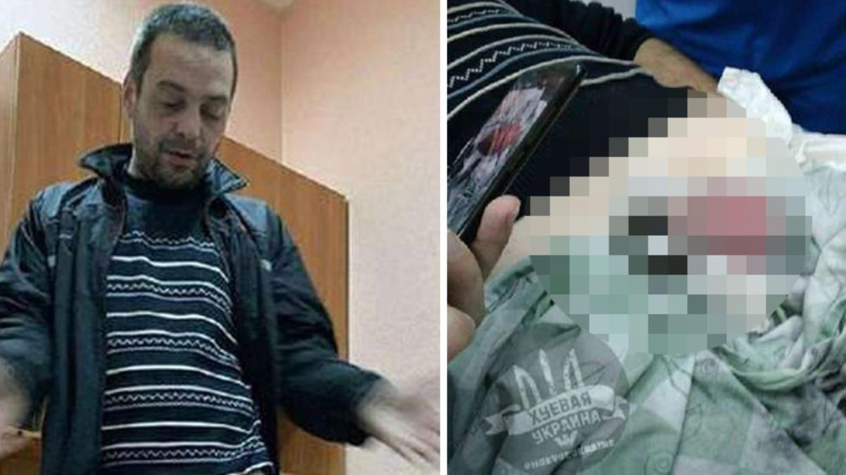 Akılalmaz intikam! Aldatılan kadın, uyuduğu sırada kocasının cinsel organına metal somun sıkıştırdı