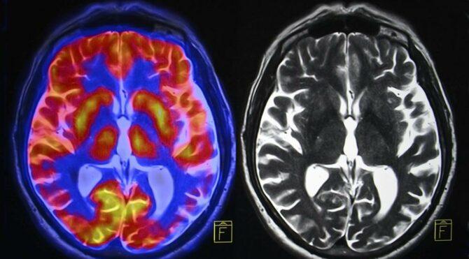 Alzheimer'ı % 99 tespit eden yazılım geliştirdilerr