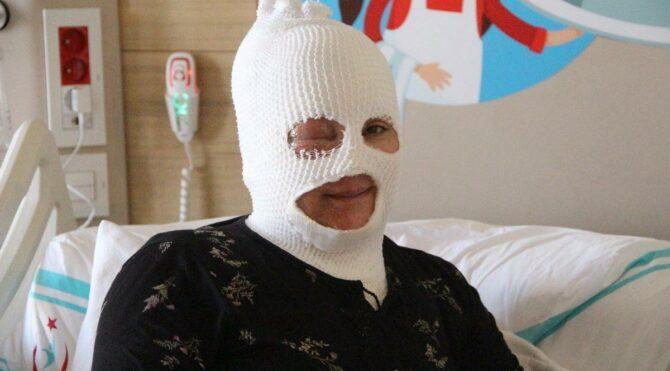 Başından aşağıya çay dökülen kadın feci şekilde yandı