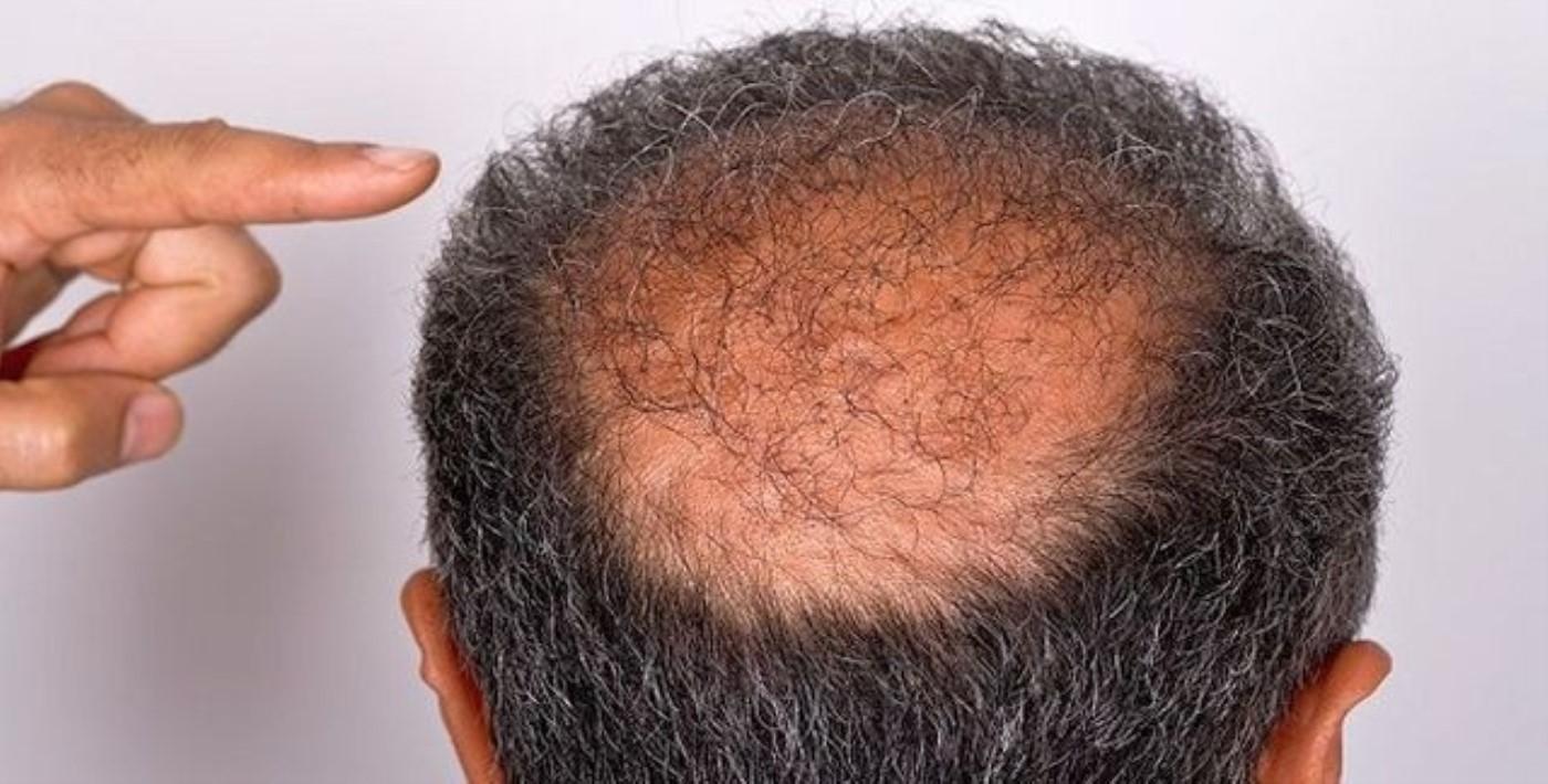 Dermatoloji Uzmanından Korkutan Açıkladı: Kovid-19 Geçirenlerde 'Saç Dökülmesi' Tehlikesi