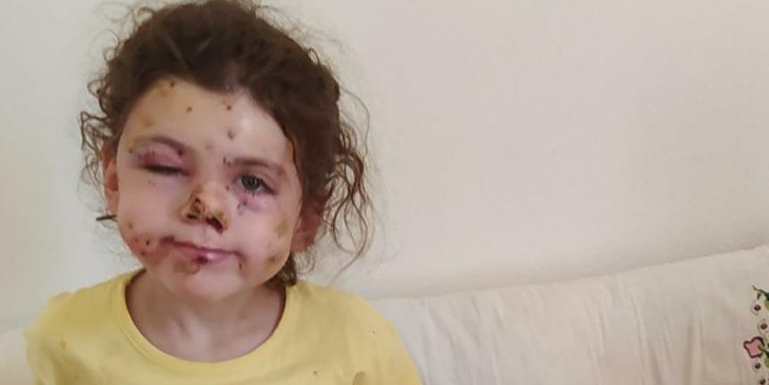 Düğün Konvoyunda Havaya Ateş Açarak 5 Yaşındaki Çocuğu Yüzünden Vurdular: Adli Kontrolle Serbest