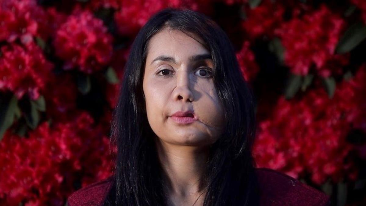 Eşi tarafından suratından vurulan Şakila Zareen, Afganistan'da kadınlara olan bakış açısını anlattı
