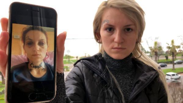 Eski Sevgilisi Tarafından 10 Yerinden Yaralanan Kadın Vahşeti Anlattı: 'Bayıldığımda Beni Bıçaklamış...'