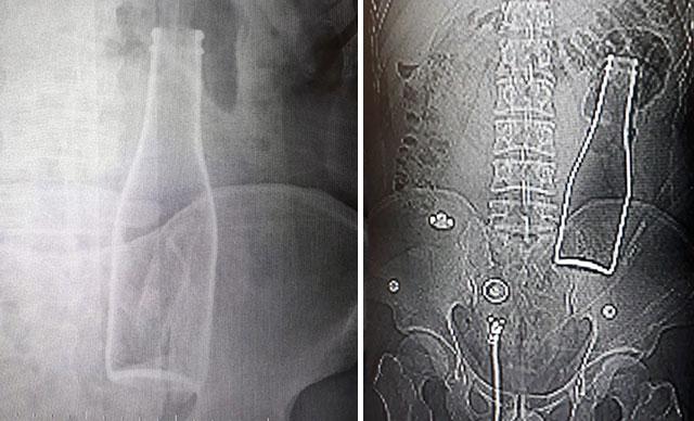 Karın Ağrısı Şikayetiyle Hastaneye Giden Adamın Vücudundan Soda Şişesi Çıkarıldı