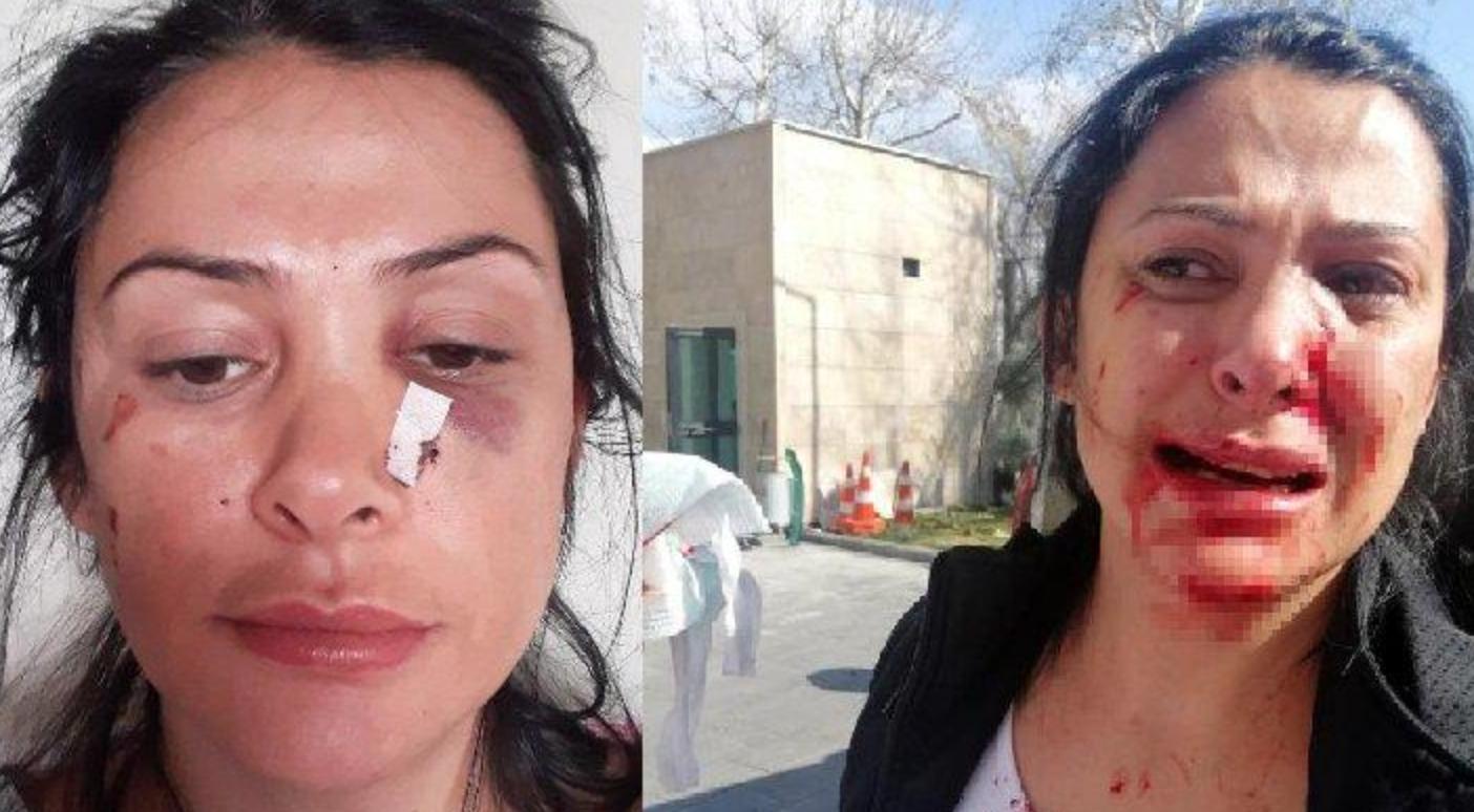 Komşu Dehşeti: Polislerin Gözü Önünde Kalemi Yüzüne Sapladı