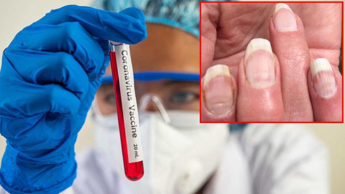 Koronavirüste yeni bir belirti daha! Enfeksiyon sonrası tırnaklarda iz bırakıyor