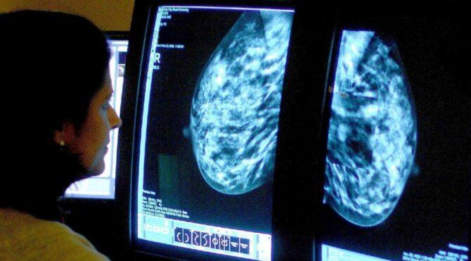Meme kanseri tedavisinde uygulanan Phesgo'ya onay çıktı