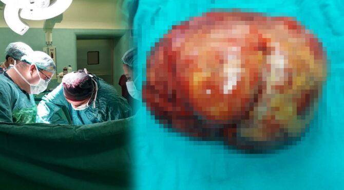 Mide ağrısıyla gitti, karnından 6 kiloluk tümör çıkarıldı