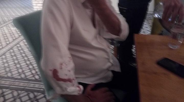 Özışık Kardeşlerin Hedefindeki Didim Belediye Başkanı Atabay'a Beyzbol Sopalı Saldırı