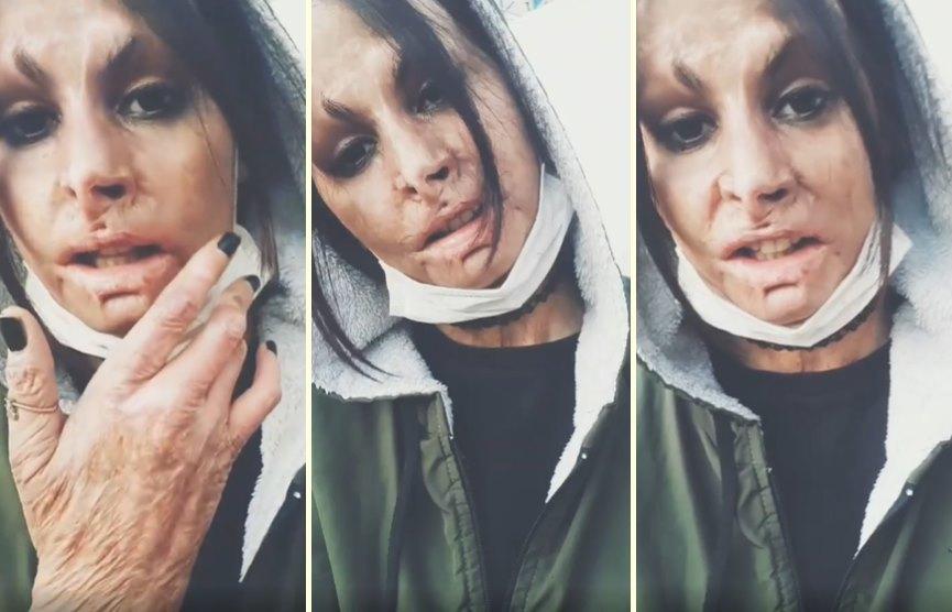 Saçlarındaki Bitlerden Kurtulmak İçin Kafasına Benzin Döken Sonrasında da Sobanın Yanına Yatan Kadının Yüzü ve Elleri Yandı