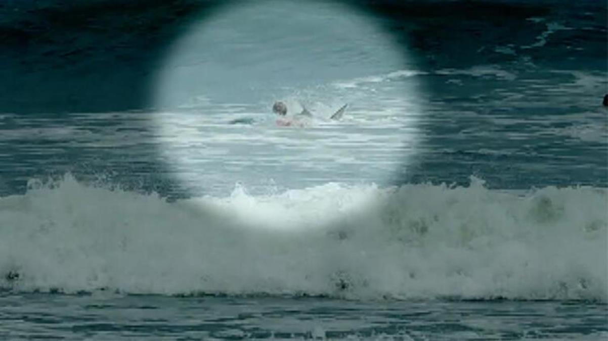 Sinsice yaklaşan köpek balığı, sörf yapan çocuğun kolunu ısırdı