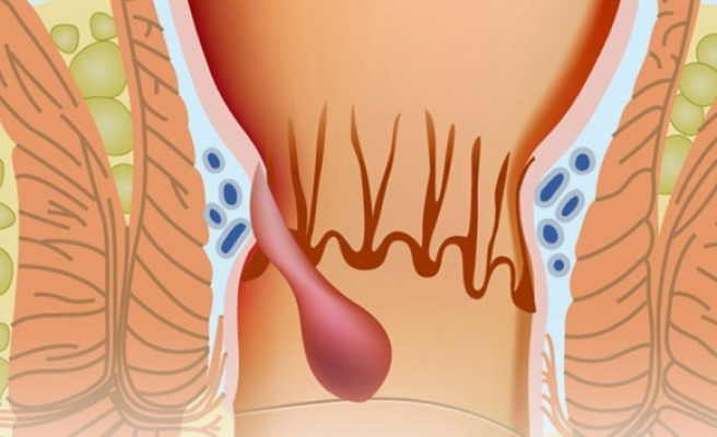 Ameliyatsız Hemoroid tedavisi