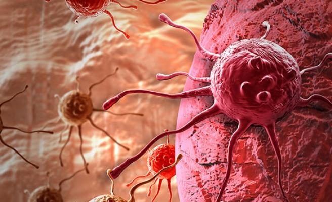 Mide kanseri nedir? Mide kanseri belirtileri, mide kanseri tedavisi