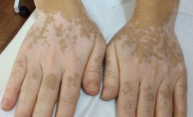 Vitiligo nasıl geçer? Vitiligo nedir? | Beyazlama hastalığı nasıl geçer
