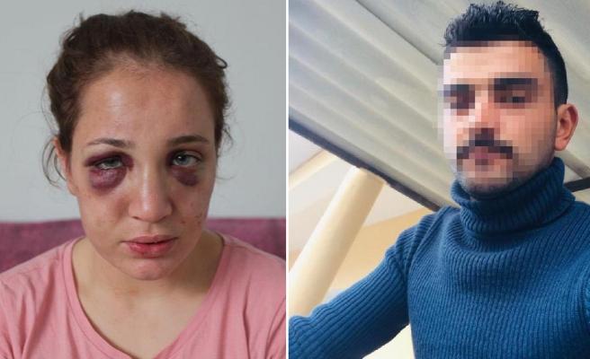Boşanma Aşamasındaki Eşini Öldüresiye Dövmüştü: İşkenceci Koca İçin Elektronik Kelepçe Kararı