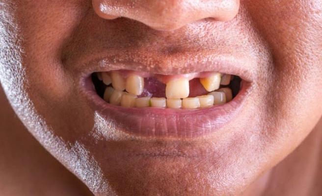 Çekilen diş, yerine geri gelebilir!