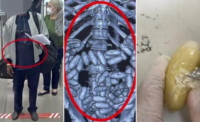 İstanbul Havalimanı'nda Bir Yolcunun Midesinden Yaklaşık 2 Kilo Kokain Çıktı!