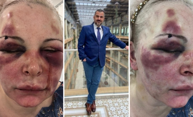 'Kanımı Yalıyor, 'Tadı Ne Güzel' Diyordu: Rus Uyruklu Kadına Otel Odasında 2 Gün Boyunca İşkence!