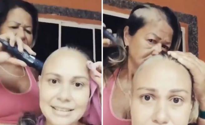Kanser Tedavisi Göre Kızının Saçlarını Kazırken Kendi Saçlarını da Kazıyarak Kızına Desteğini Gösteren Anne