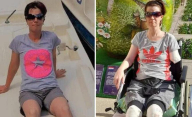 Karın ağrısı şikayetiyle hastaneye giden kadının bacakları ve kolu kesildi