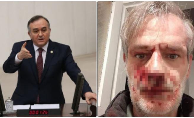 MHP Grup Başkanvekili Erkan Akçay'dan Tepki Çeken 'Dayak' Paylaşımı: 'Bu Yakışıklı Kim?'