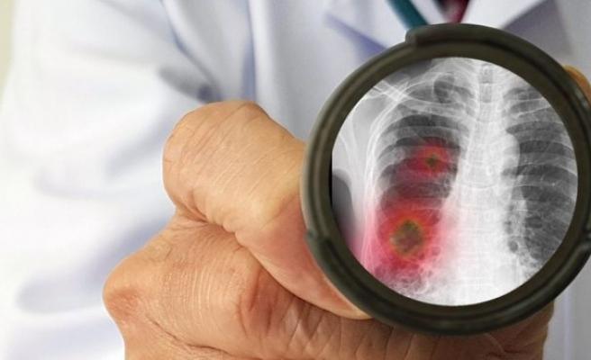 'Salgında akciğer kanseri tanısı alanların sayısı arttı'