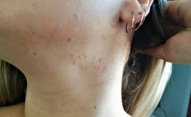 Sıcak havalarda ter alerjisine dikkat