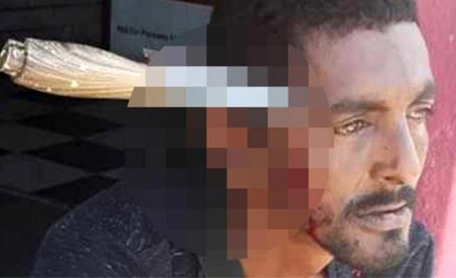 Tanımadığı biri tarafından kafasına bıçak saplanan adam, 3 gün sonra işe döndü