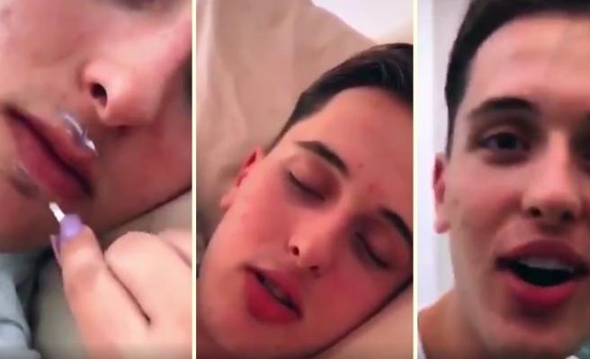 Uyuduğu Sırada Kız Arkadaşının Gazabına Uğrayıp Estetik Bir Görünüme Sahip Olan Genç