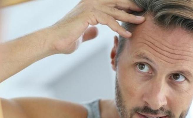 Uzmanından saç ekimine dair 6 maddede doğru bilinen yanlışlar