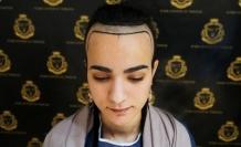 Hair Center of Turkey kadınlarda saç dökülmesine noktayı koyuyor