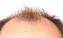 'Kullandığınız ilaçlar saçlarınızın dökülme nedeni olabilir'