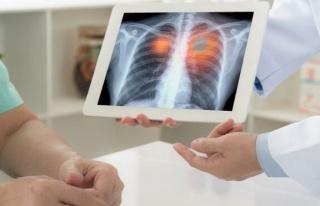 ADÜ Öğretim Üyesi Gülen: Sigara, akciğer kanserinin...
