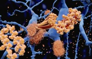 Alzheimer hastalığındaki keşif, yeni tedavi yöntemleri...