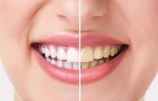 Bilinçsiz yapılan dişlerde ağartma işlemi kalıcı...