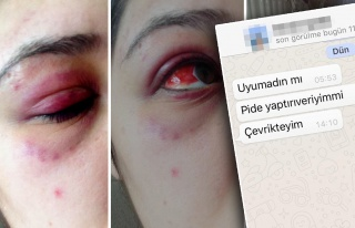 Genç Kadına Dehşeti Yaşatan Avukat, Sabah 'Pide...