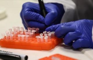 İlk Ölüm Gerçekleşti: Çin'den Çıkan Yeni Virüs...