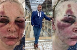 'Kanımı Yalıyor, 'Tadı Ne Güzel' Diyordu: Rus...