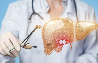 Karaciğer yağlanması nasıl önlenir?