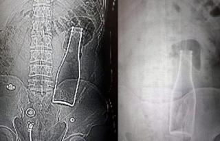 Karaman'da hayret veren olay: Vücudunda şişe...