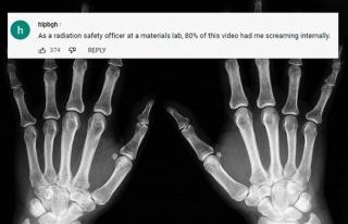 Kendi röntgen cihazını kendi yaptı
