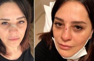 Meşhur şarkıcı Reyhan Karaca'nın burnu kırıldı!