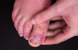 Uzmanlar uyarıyor: Covid parmağı sendromu