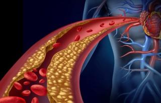 Yüksek kolesterollü hastalara yeni umut: Kolesterol...