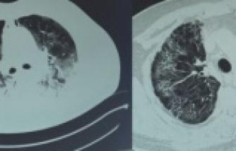 Koronavirüs akciğerinin yüzde 80'ini kaplamıştı; ozon tedavisiyle hayata döndü