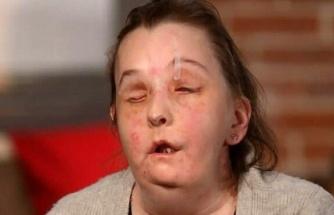 ABD bu kadını konuşuyor: Yüz nakli olan kadın basının karşısına çıktı