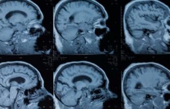 ABD'li uzmanlardan dikkat çeken çalışma: Corona geçiren gençlerde psikiyatrik sorunlar ortaya çıktı