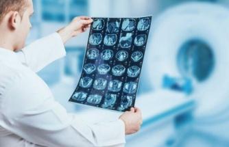 Beyin tümörü teşhisinde çığır açan keşif: İdrar testiyle tespit edilebilecek