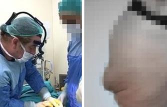 Brezilya Kalçası İstedi, Ölümden Döndü: 8 Kere Ameliyat Olan Kadın Şimdi Oturamıyor, Hareket Edemiyor...